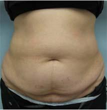 Abdominoplastia - Antes e Depois