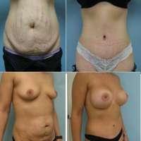 Abdominoplastia- Antes e Depois