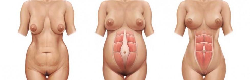 abdomino