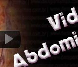 Abdominoplastia- Vídeo